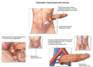 Возможные осложнения увелечения поджелудочной