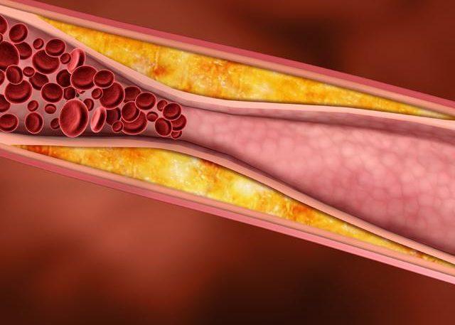 Высокого холестерина в крови