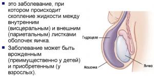 Классификация гидроцеле яичка