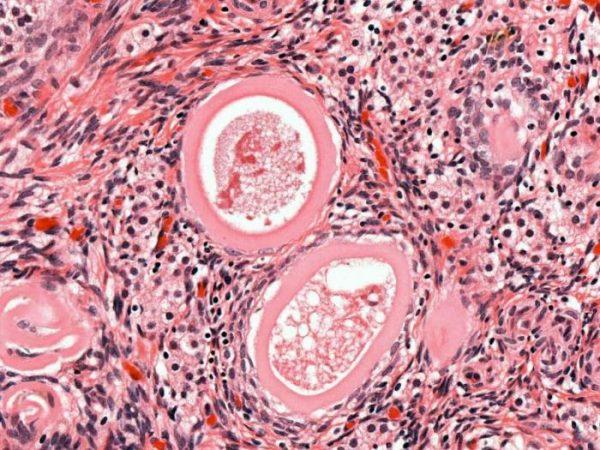 Мультифолликулярный яичник