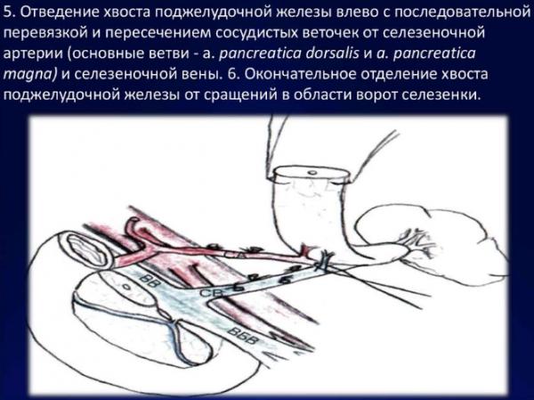 Атрофия хвоста ПЖ