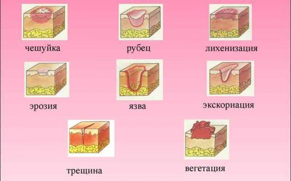Атрофия кожи в деталях