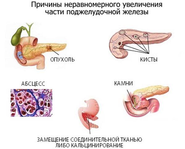 Диффузное увеличение поджелудочной железы