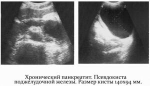 Гиперэхогенность поджелудочной железы