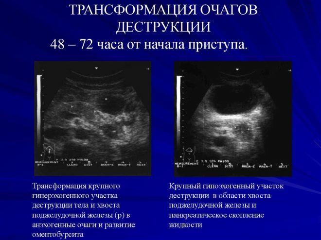 Гипоэхогенность поджелудочной железы