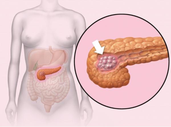 Липоматоза поджелудочной