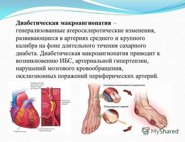 Макроангиопатия