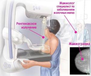 Маммографическое обследование молочных желез - как это делается
