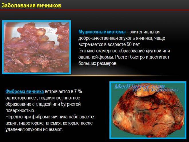 Муцинозное онкологическое заболевание