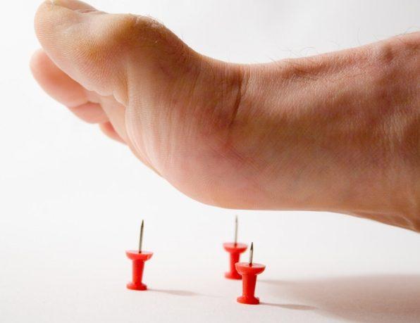 Покалывание в руках и в ногах