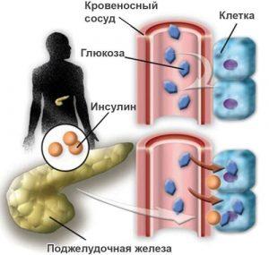 Сахарный диабет может быть причиной гиперэхогенности ПЖ