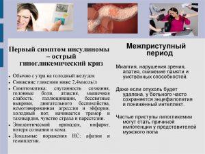 Симптомы болезни инсулинома