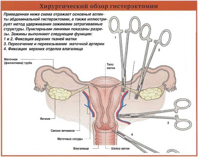 Удаление яичников
