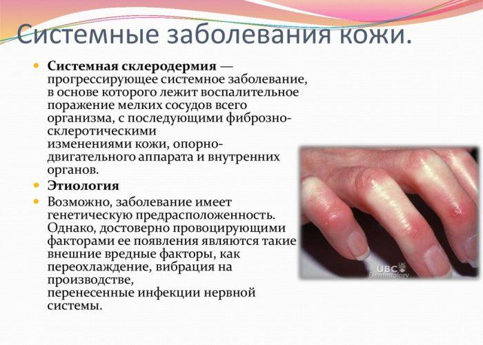 Воспалительные поражения кожи