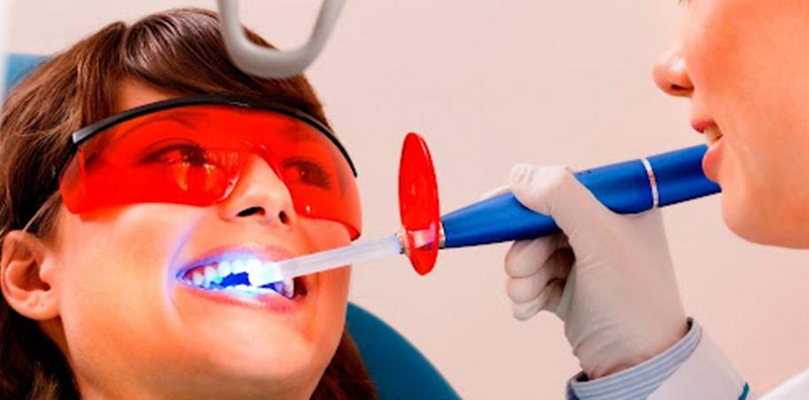 Как стоматологи отбеливают эмаль